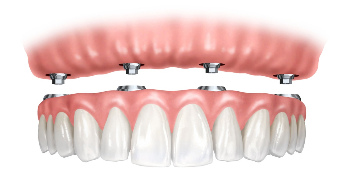 Prótesis híbrida sobre implantes dentales | Dr. Manuel López de Calatayud