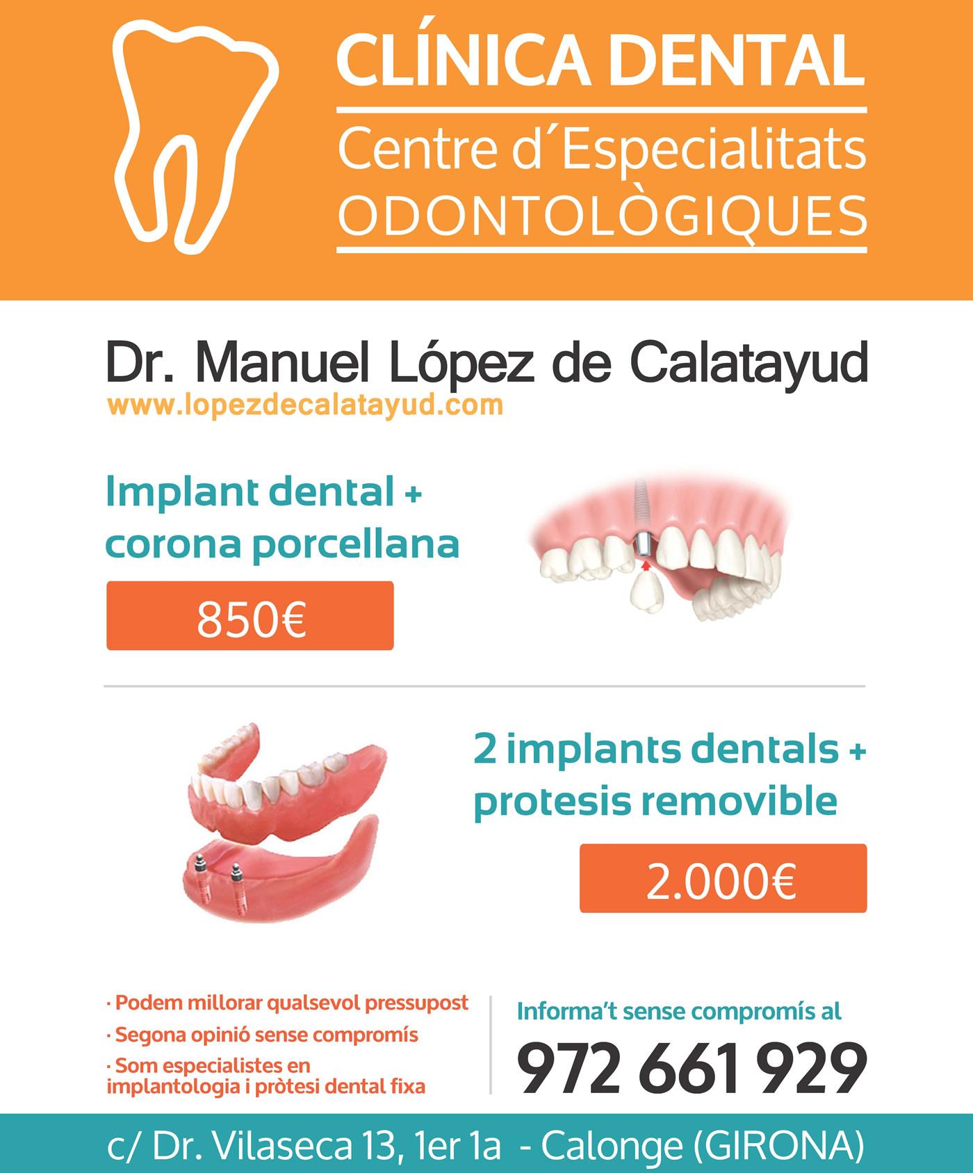 Promoción Implantes | Dr. Manuel López de Calatayud