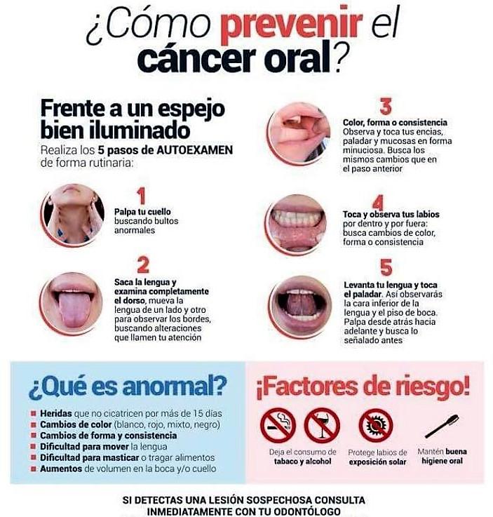 Cómo prevenir el cáncer oral | Clínica dental Dr. Manuel López de Calatayud