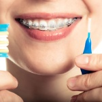 Higiene ortodoncia fija | Clínica dental Dr. López de Calatayud
