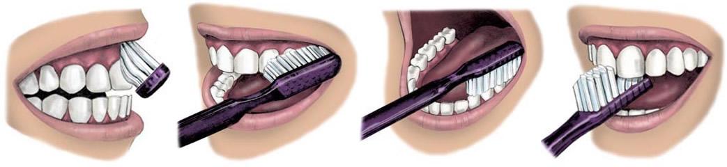 Cómo cepillarse los dientes | Clínica dental Dr. López de Calatayud
