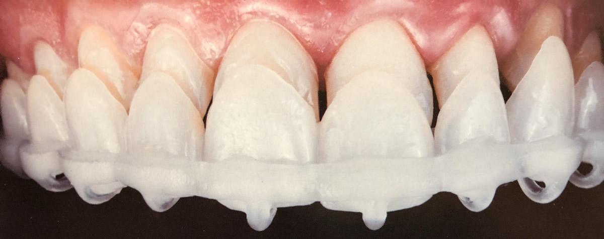 Carillas dentales | Dr. Manuel López de Calatayud