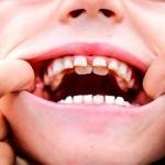 Dr. Manuel López de Calatayud - Dientes de tiburón o la doble fila de dientes