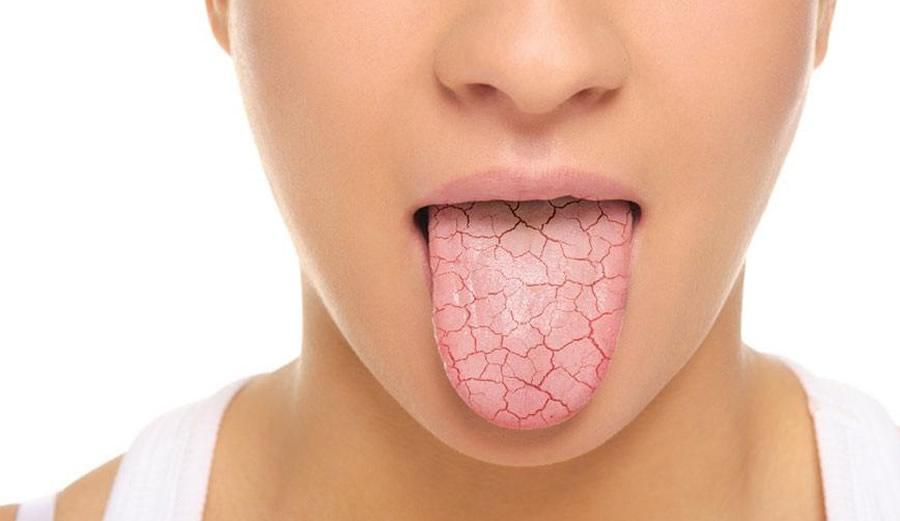 Dr.Mauel López de Calatayud - Síndrome de la boca seca